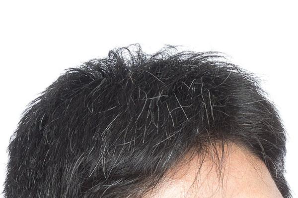 白髪を予防してかっこいい男性を目指そう